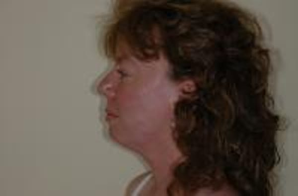 Neck Lift Gallery - Patient 22397149 - Image 5