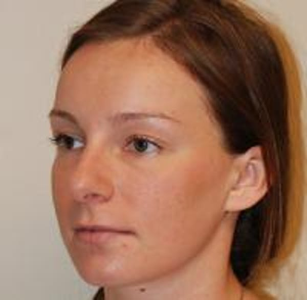 Rhinoplasty Gallery - Patient 22397164 - Image 5