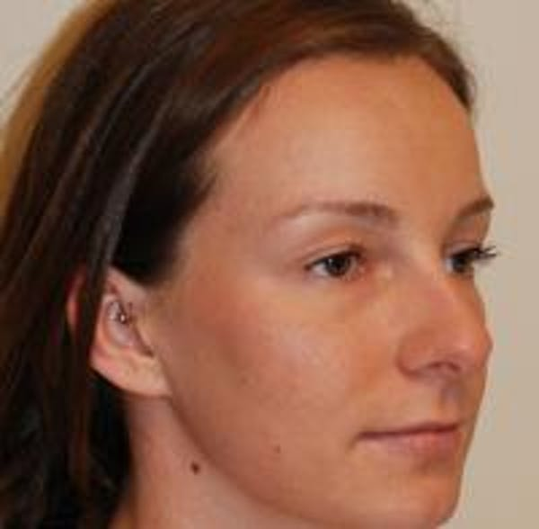 Rhinoplasty Gallery - Patient 22397164 - Image 3