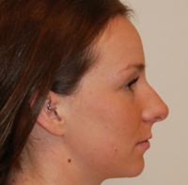 Rhinoplasty Gallery - Patient 22397164 - Image 7
