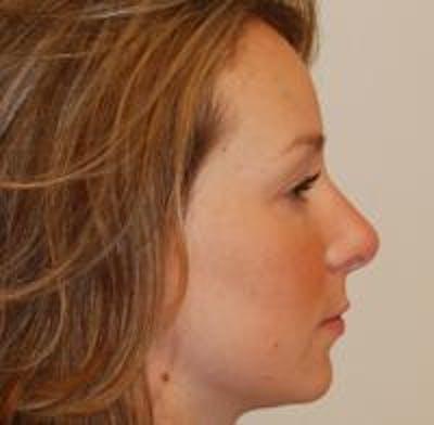 Rhinoplasty Gallery - Patient 22397164 - Image 8