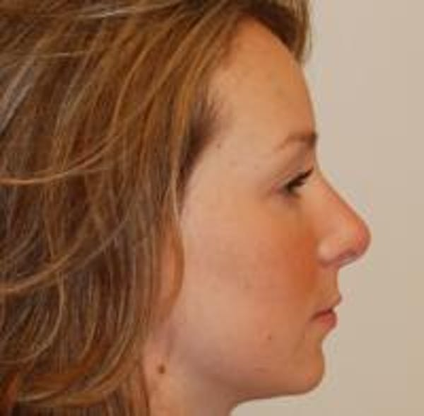 Rhinoplasty Gallery - Patient 22397164 - Image 8