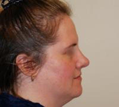 Rhinoplasty Gallery - Patient 22397165 - Image 4