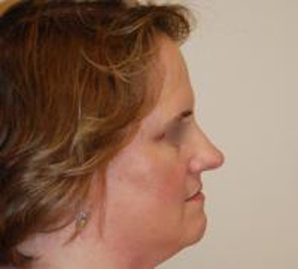 Rhinoplasty Gallery - Patient 22397165 - Image 3
