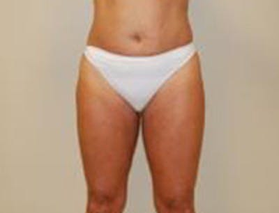 Liposuction Gallery - Patient 18618245 - Image 2