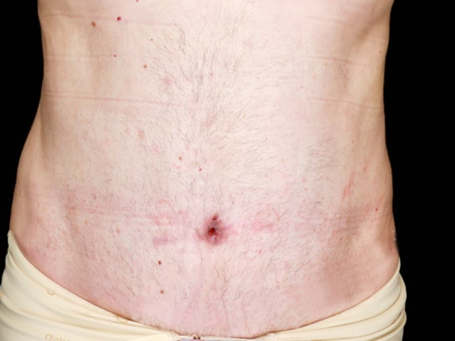 Male after abdominoplasty and liposuction