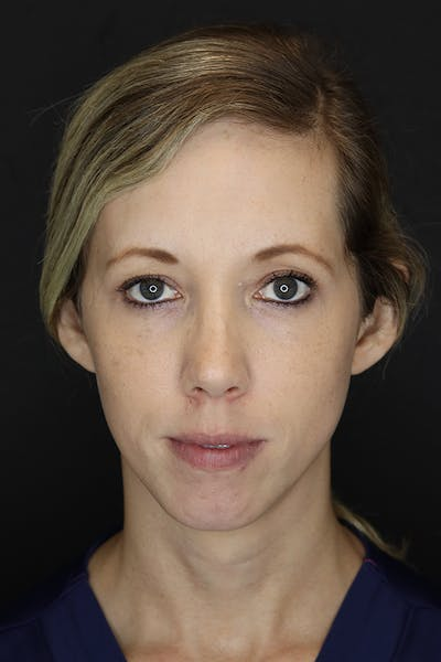 Facial Fillers Gallery - Patient 53082238 - Image 1