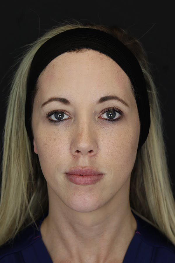 Facial Fillers Gallery - Patient 53082238 - Image 2