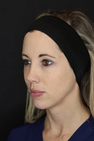 Facial Fillers Gallery - Patient 53082238 - Image 6