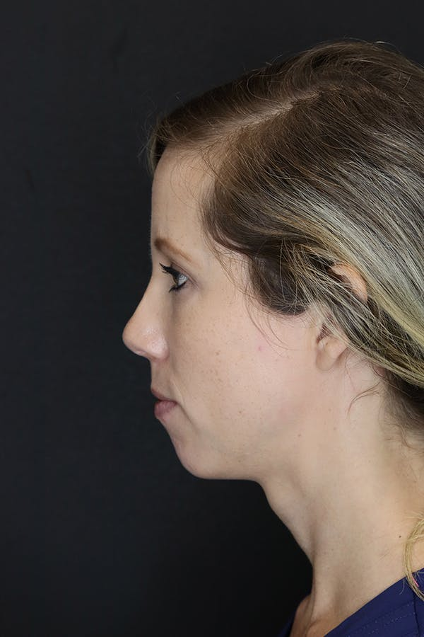 Facial Fillers Gallery - Patient 53082238 - Image 7