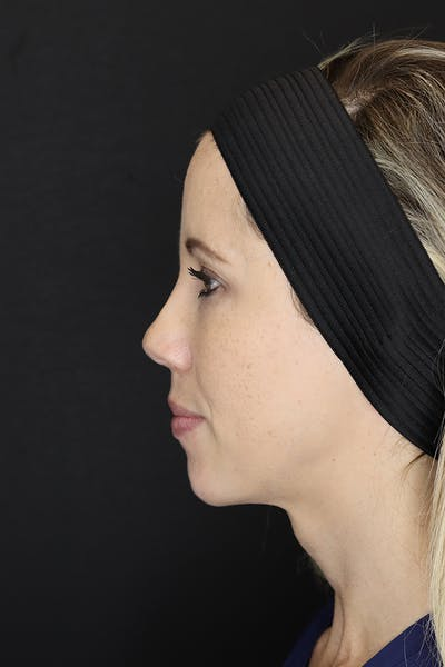 Facial Fillers Gallery - Patient 53082238 - Image 8