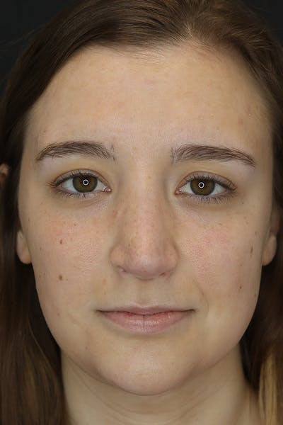 Facial Fillers Gallery - Patient 53082239 - Image 2