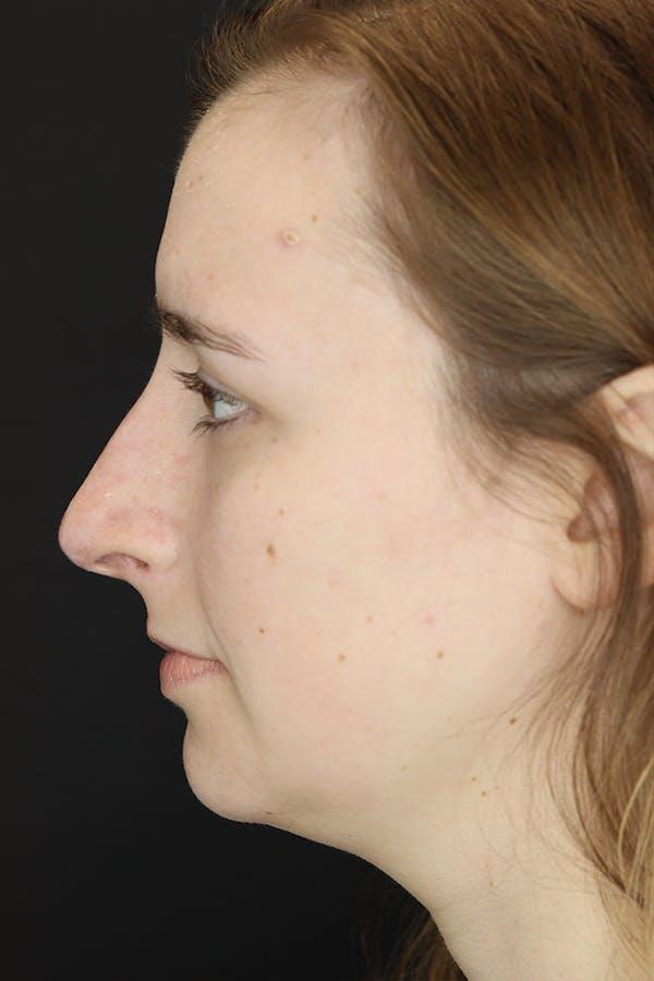 Rhinoplasty Gallery - Patient 53084382 - Image 5