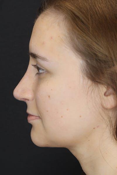 Rhinoplasty Gallery - Patient 53084382 - Image 6