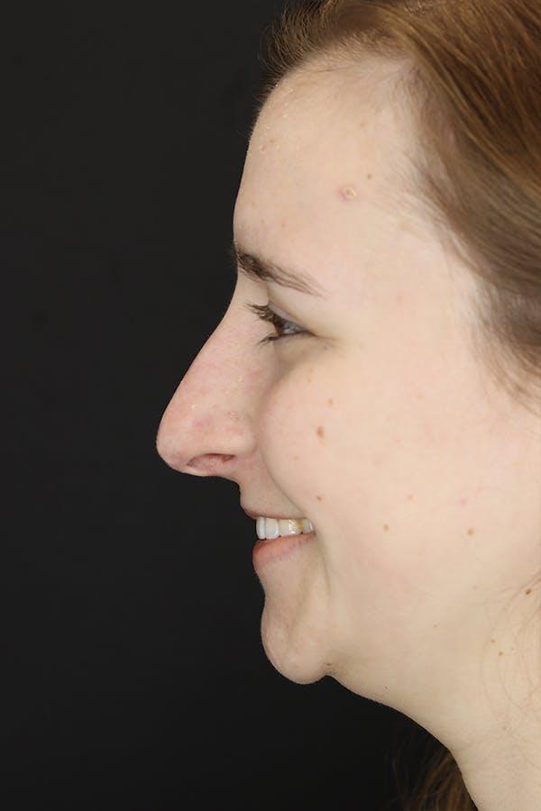 Rhinoplasty Gallery - Patient 53084382 - Image 7