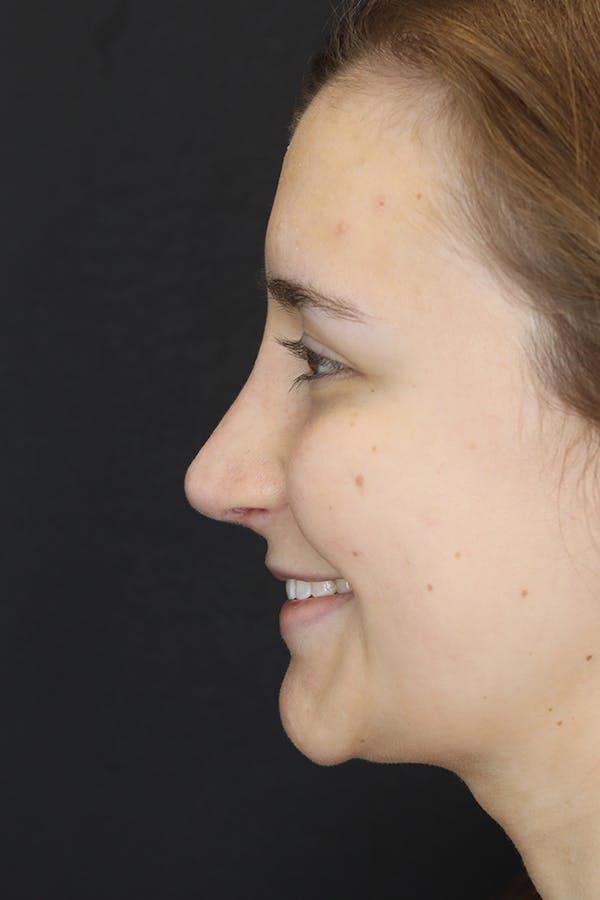 Rhinoplasty Gallery - Patient 53084382 - Image 8