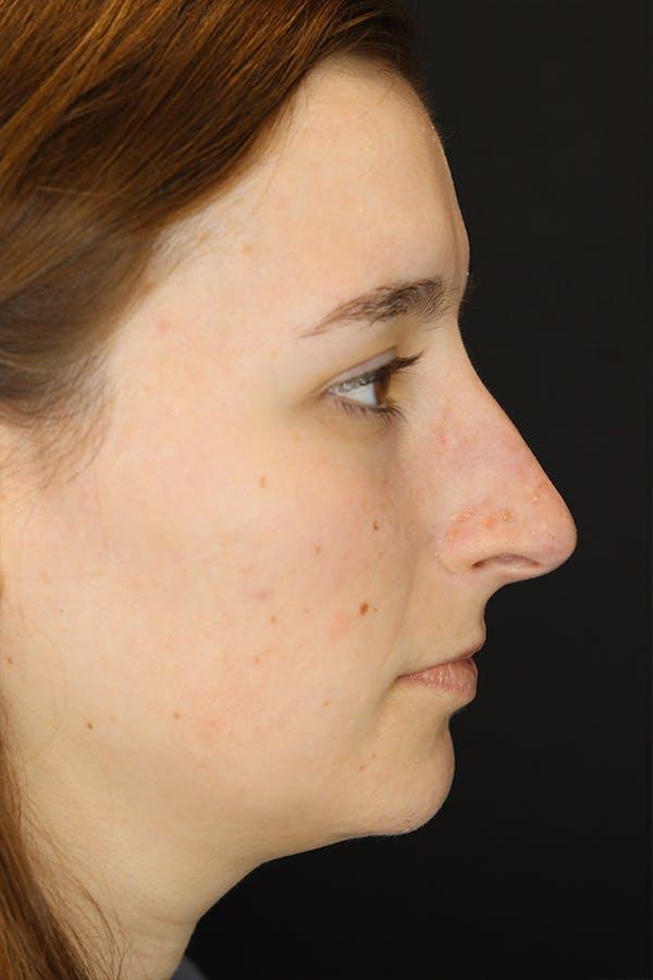 Rhinoplasty Gallery - Patient 53084382 - Image 9