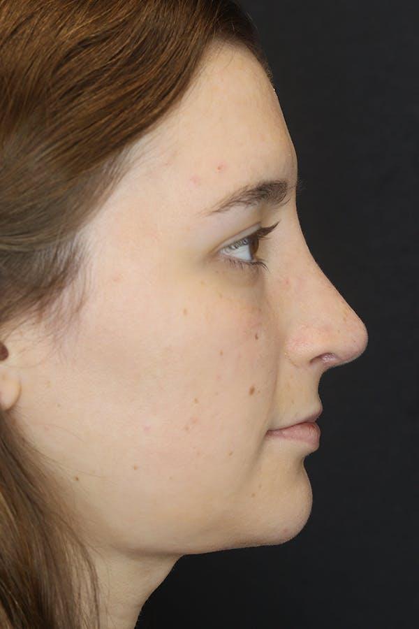 Rhinoplasty Gallery - Patient 53084382 - Image 10