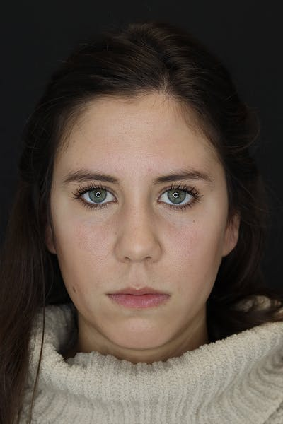 Facial Fillers Gallery - Patient 53082240 - Image 1