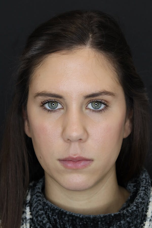 Facial Fillers Gallery - Patient 53082240 - Image 2