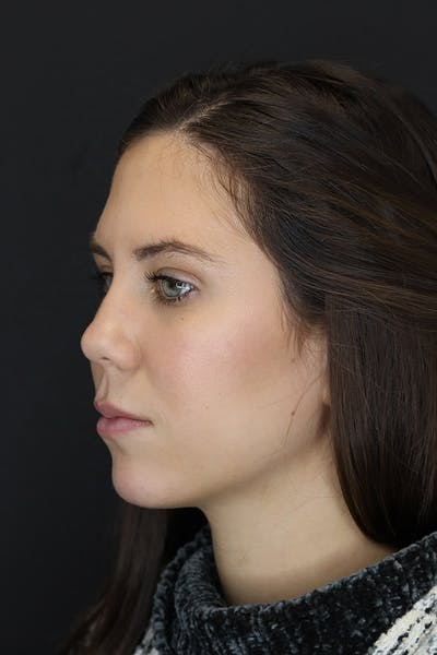 Facial Fillers Gallery - Patient 53082240 - Image 4