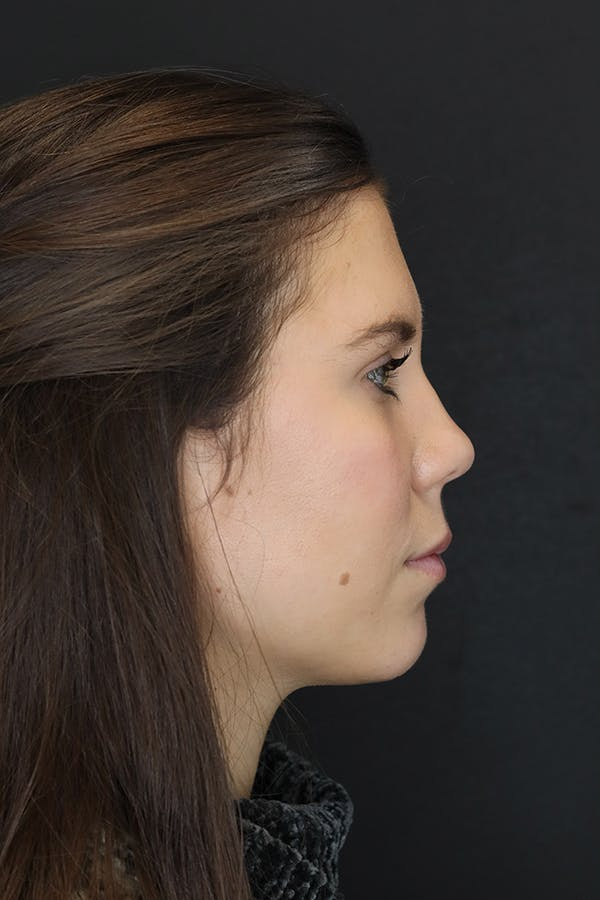 Facial Fillers Gallery - Patient 53082240 - Image 6