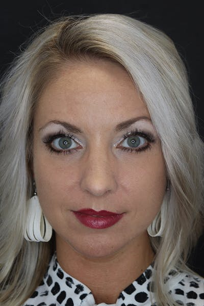Facial Fillers Gallery - Patient 53082241 - Image 2