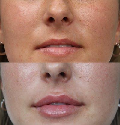Lip Augmentation Gallery - Patient 53082296 - Image 1
