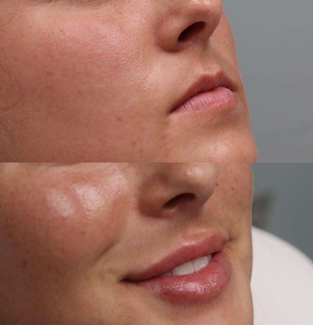 Lip Augmentation Gallery - Patient 53082296 - Image 2