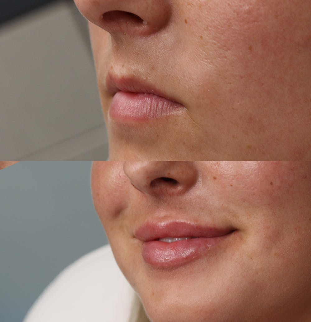 Lip Augmentation Gallery - Patient 53082296 - Image 3