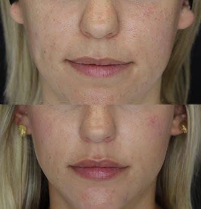 Lip Augmentation Gallery - Patient 53082297 - Image 1