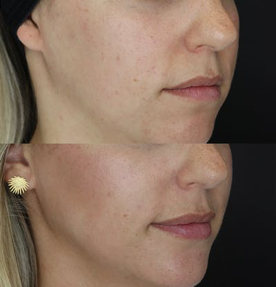 Lip Augmentation Gallery - Patient 53082297 - Image 2