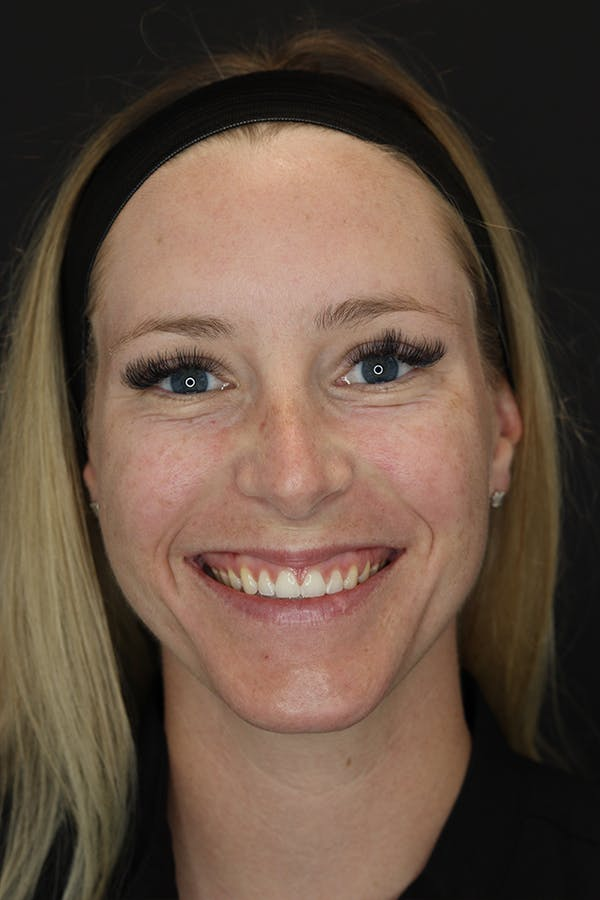 Nonsurgical Rhinoplasty Gallery - Patient 53082466 - Image 1