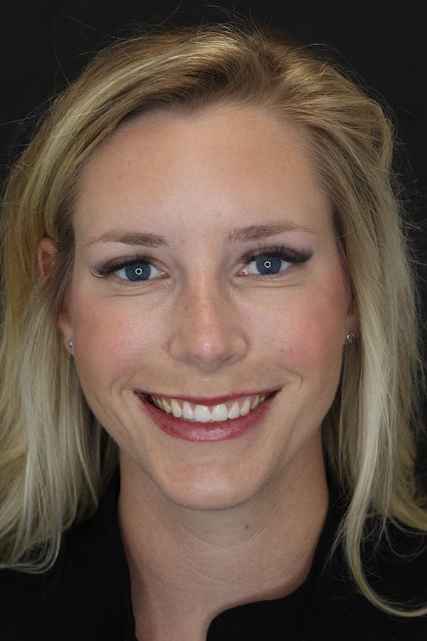 Nonsurgical Rhinoplasty Gallery - Patient 53082466 - Image 2