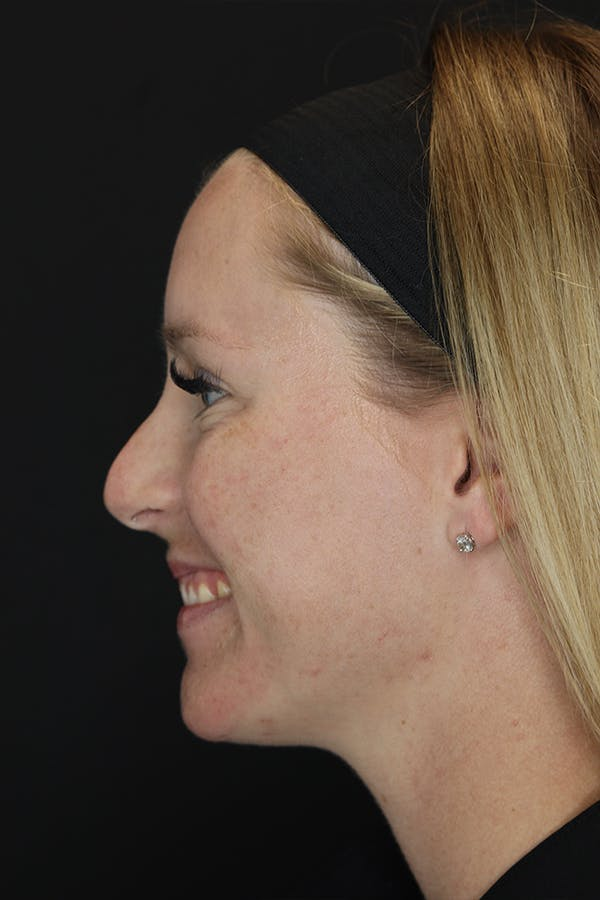 Nonsurgical Rhinoplasty Gallery - Patient 53082466 - Image 5
