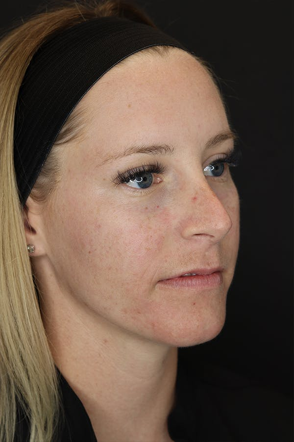 Nonsurgical Rhinoplasty Gallery - Patient 53082466 - Image 7