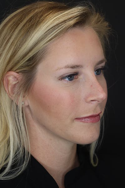 Nonsurgical Rhinoplasty Gallery - Patient 53082466 - Image 8