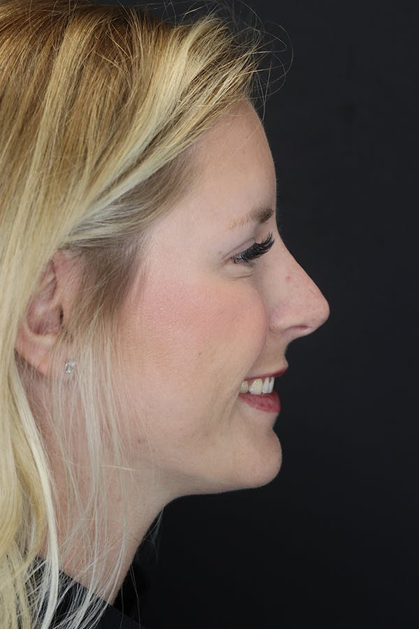 Nonsurgical Rhinoplasty Gallery - Patient 53082466 - Image 10