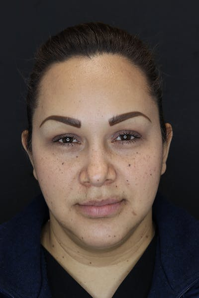 Buccal Fat Removal Gallery - Patient 53082533 - Image 2