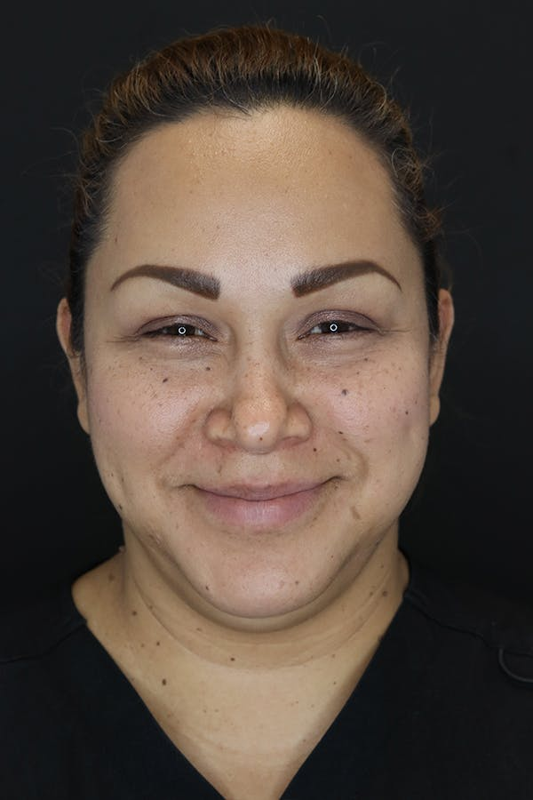 Buccal Fat Removal Gallery - Patient 53082533 - Image 3