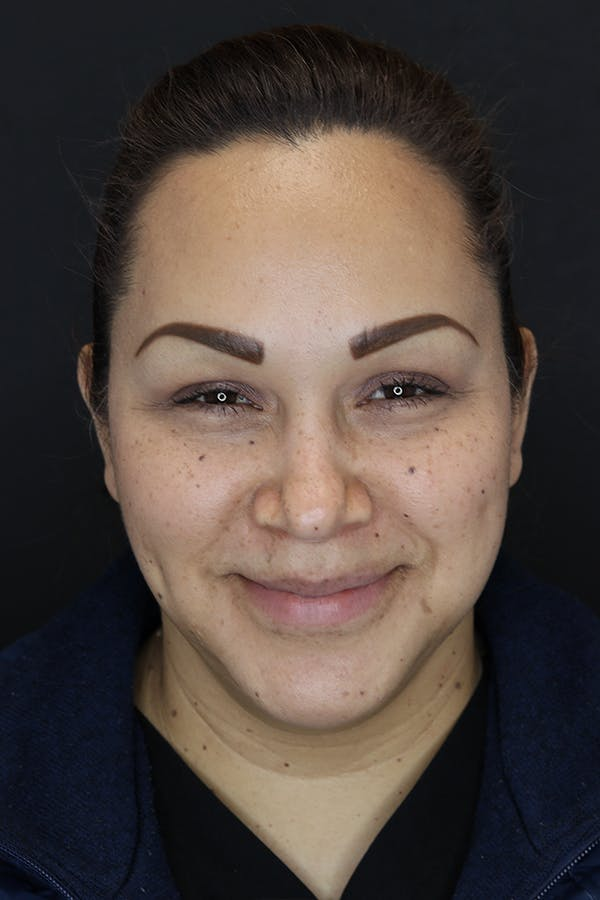Buccal Fat Removal Gallery - Patient 53082533 - Image 4