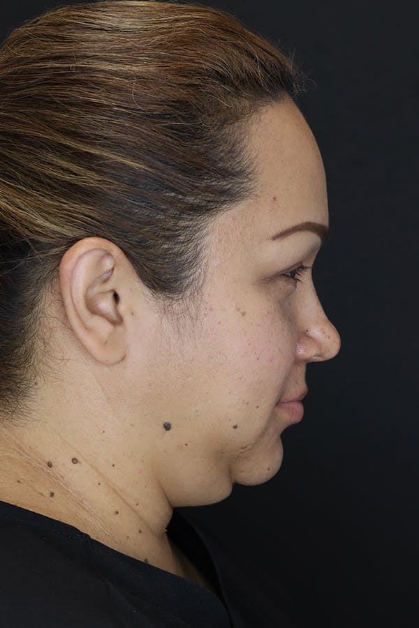 Buccal Fat Removal Gallery - Patient 53082533 - Image 5