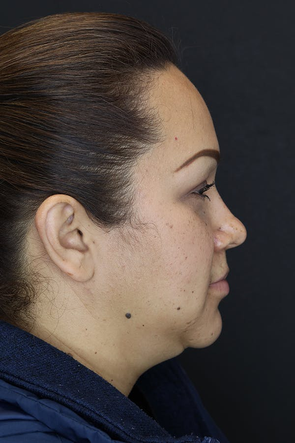 Buccal Fat Removal Gallery - Patient 53082533 - Image 6
