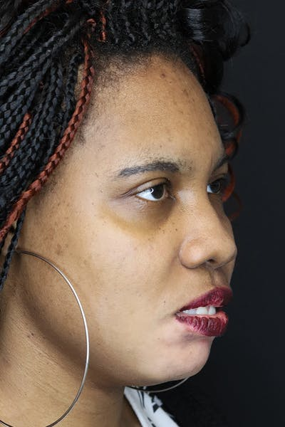 Chin Augmentation  Gallery - Patient 53082677 - Image 1