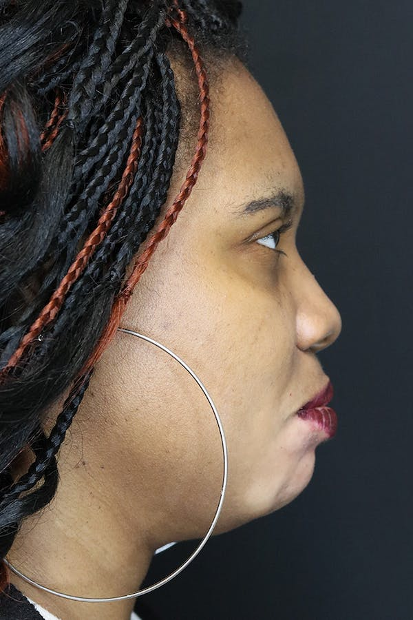 Chin Augmentation  Gallery - Patient 53082677 - Image 3