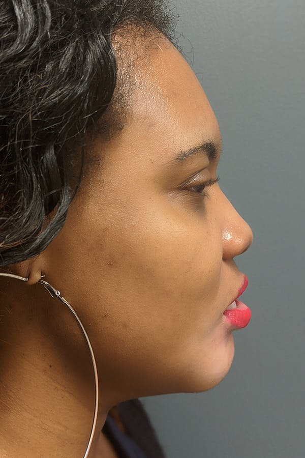Chin Augmentation  Gallery - Patient 53082677 - Image 4