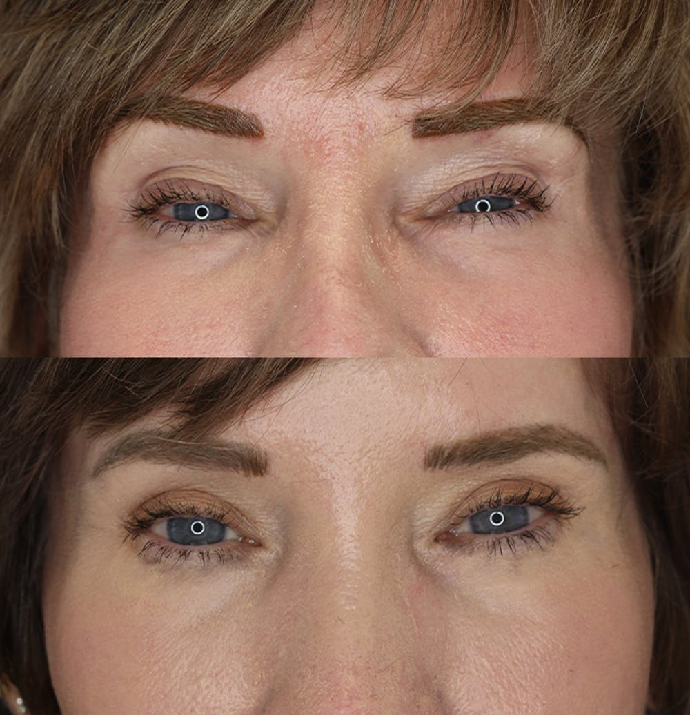 Eyelid Surgery Gallery - Patient 53082734 - Image 1