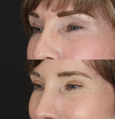 Eyelid Surgery Gallery - Patient 53082734 - Image 2