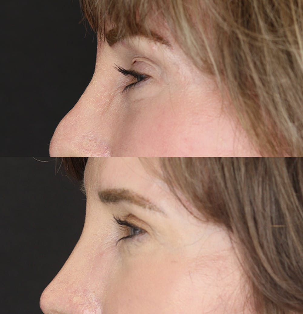 Eyelid Surgery Gallery - Patient 53082734 - Image 3