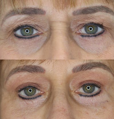 Eyelid Surgery Gallery - Patient 53082735 - Image 1